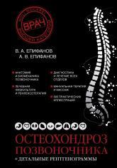 купить: Книга Остеохондроз позвоночника + детальные рентгенограммы